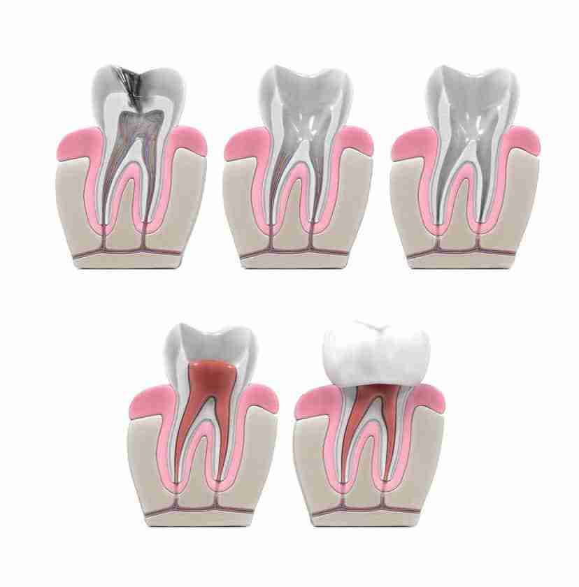 Dentist in Casselman Restore Damaged Teeth With Root Canal Treatment